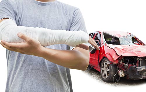 A Fayetteville car accident lawyer with Keith Law will fight to get you the maximum compensation.